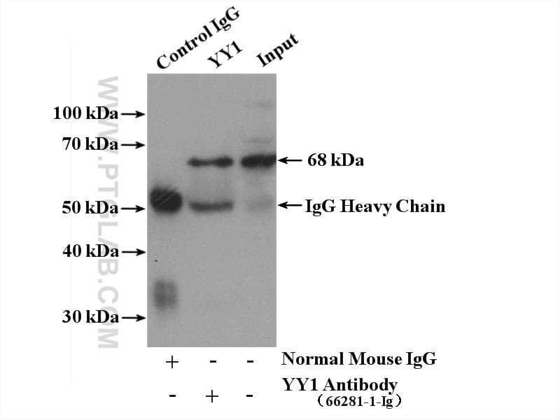 YY1 Antibody in Immunoprecipitation (IP)