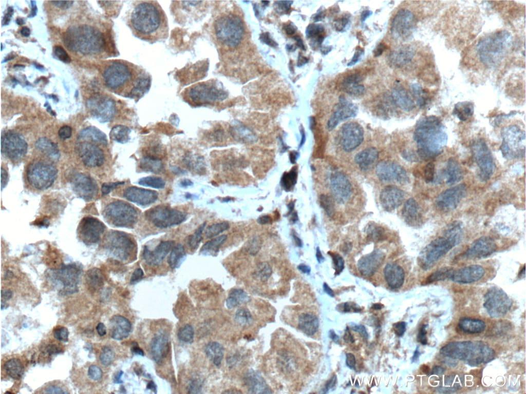 IGF1R beta chain Antibody in Immunohistochemistry (Paraffin) (IHC (P))