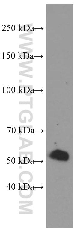 Sestrin2 Antibody in Western Blot (WB)