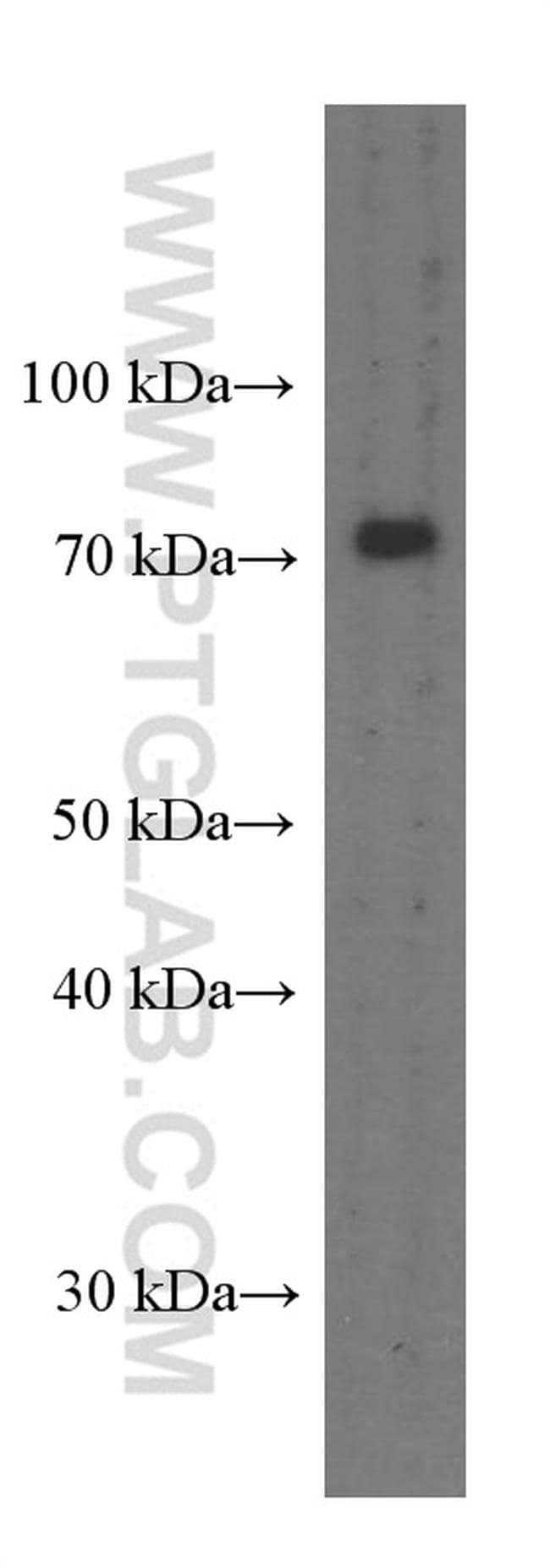 PEX5 Antibody in Western Blot (WB)
