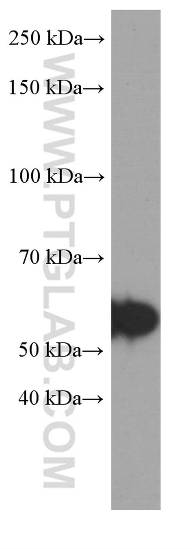 TH Antibody in Western Blot (WB)