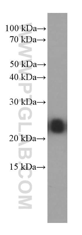 RAB5A Antibody in Western Blot (WB)