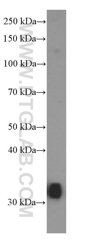 MKP-2 Antibody in Western Blot (WB)
