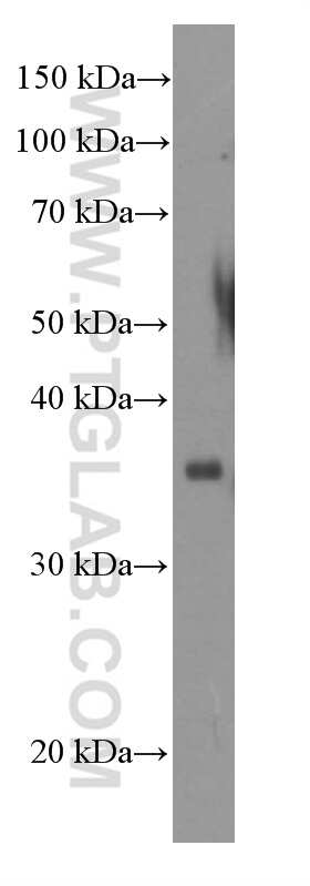 ACTH Antibody in Western Blot (WB)