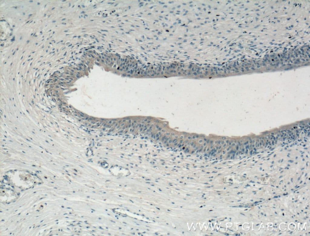 CHRNA5 Antibody in Immunohistochemistry (Paraffin) (IHC (P))