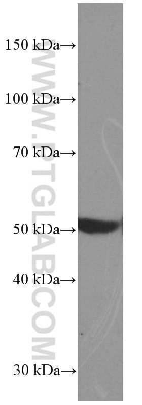 BMP5 Antibody in Western Blot (WB)