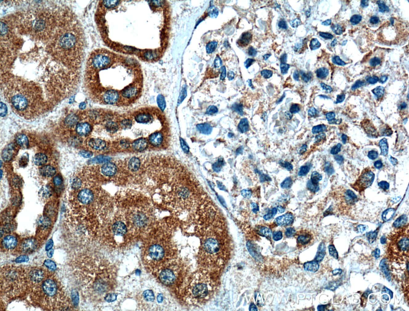 VDAC2 Antibody in Immunohistochemistry (Paraffin) (IHC (P))