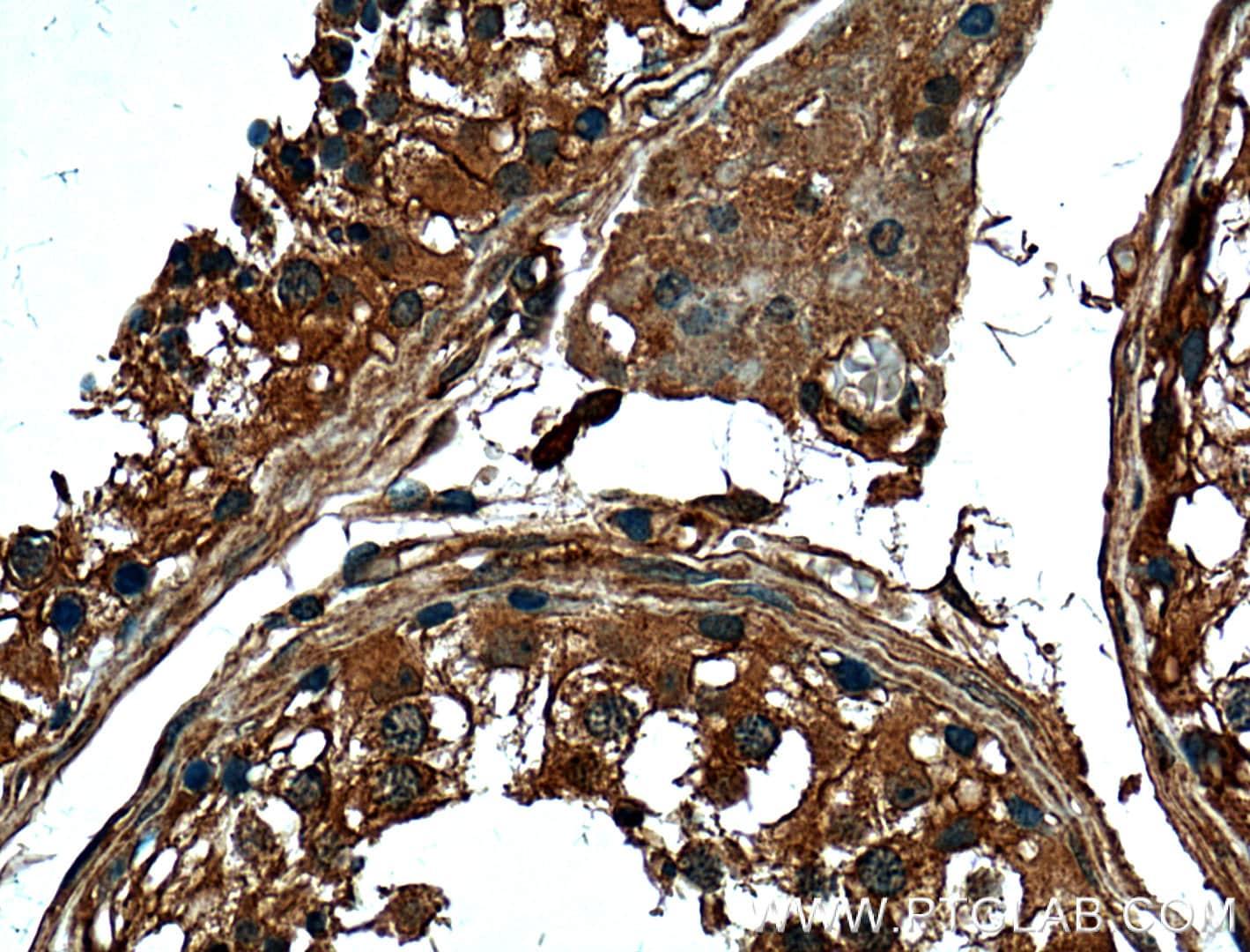 FKBPL Antibody in Immunohistochemistry (Paraffin) (IHC (P))