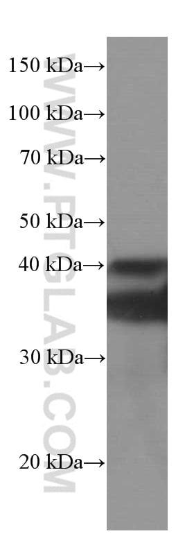 SIRT2 Antibody in Western Blot (WB)
