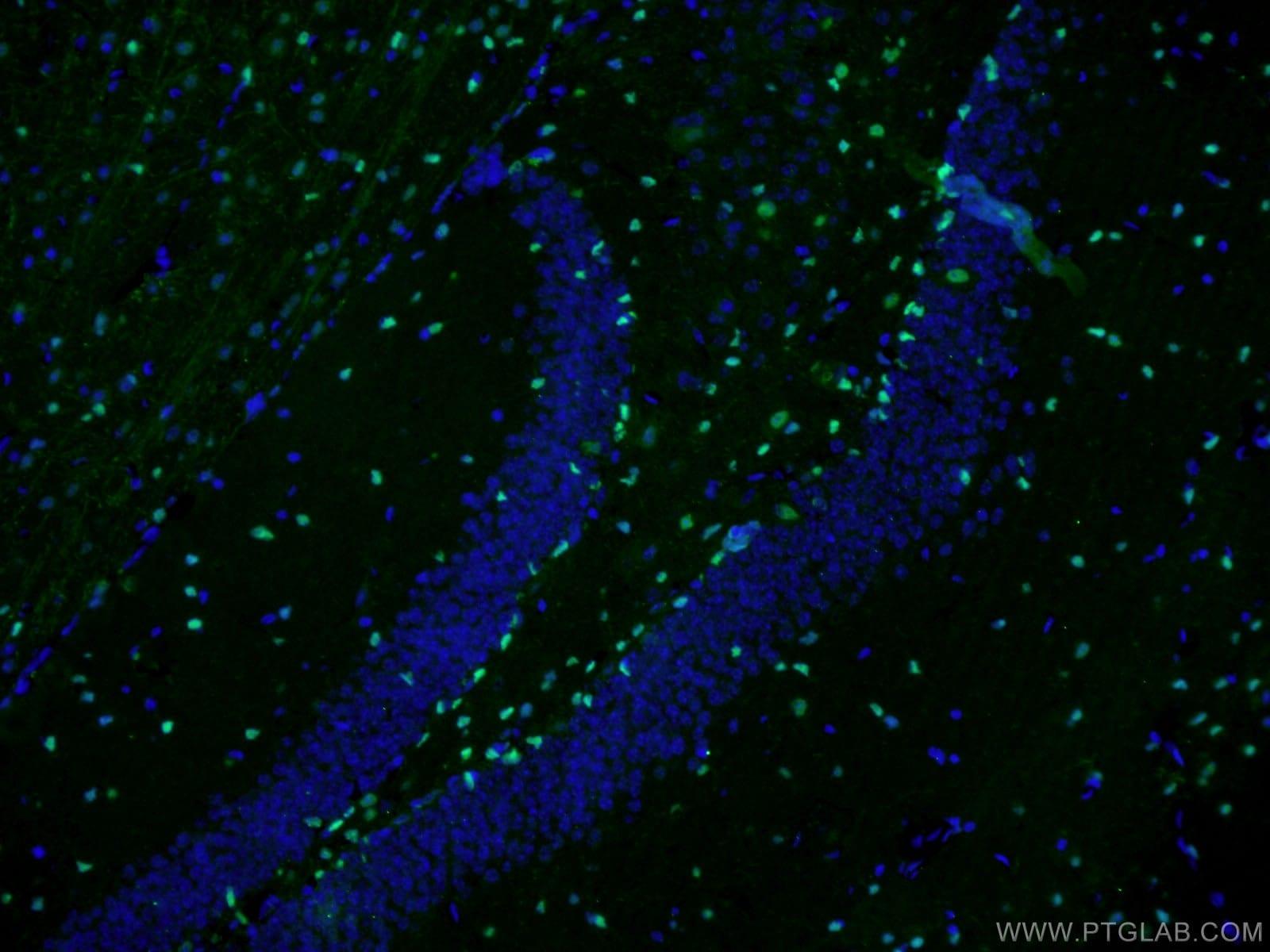 SOX2 Antibody in Immunofluorescence (IF)