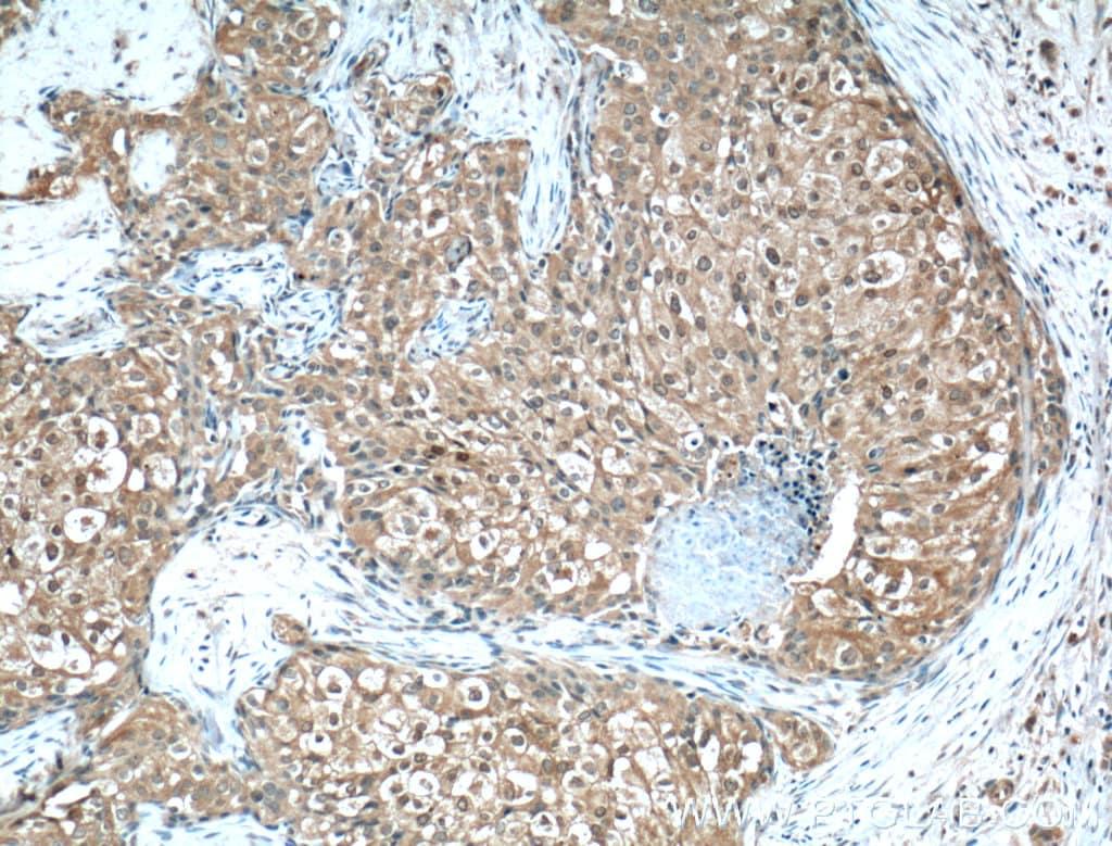 Phospho-AKT (Ser473) Antibody in Immunohistochemistry (Paraffin) (IHC (P))