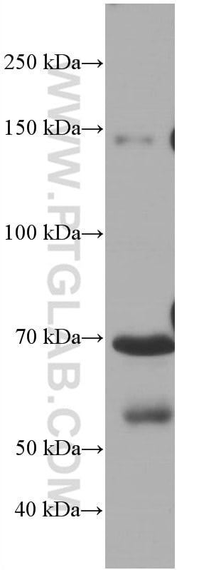 Hemopexin Antibody in Western Blot (WB)