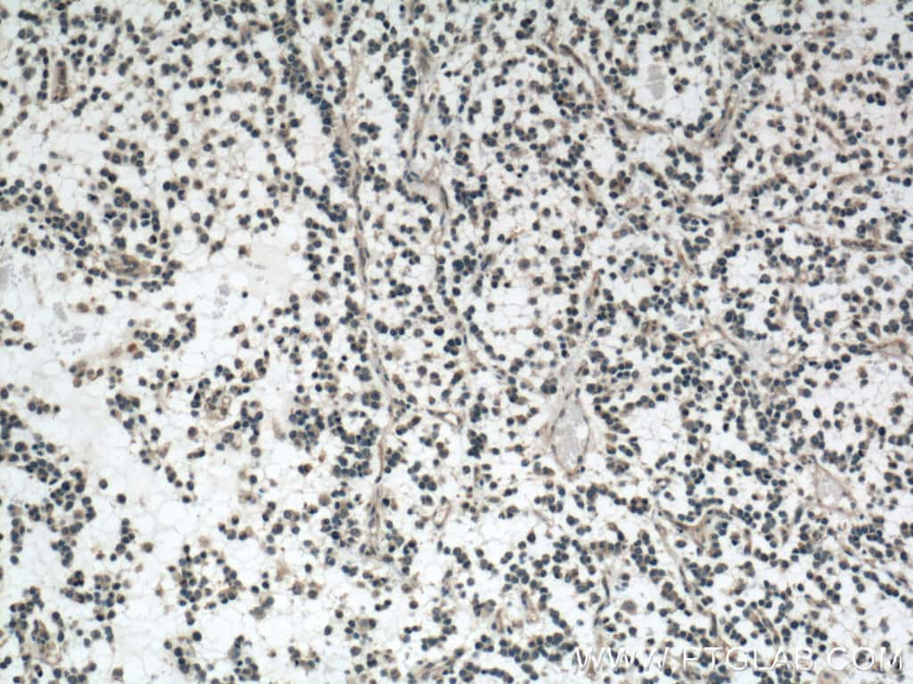 OLIG2 Antibody in Immunohistochemistry (Paraffin) (IHC (P))