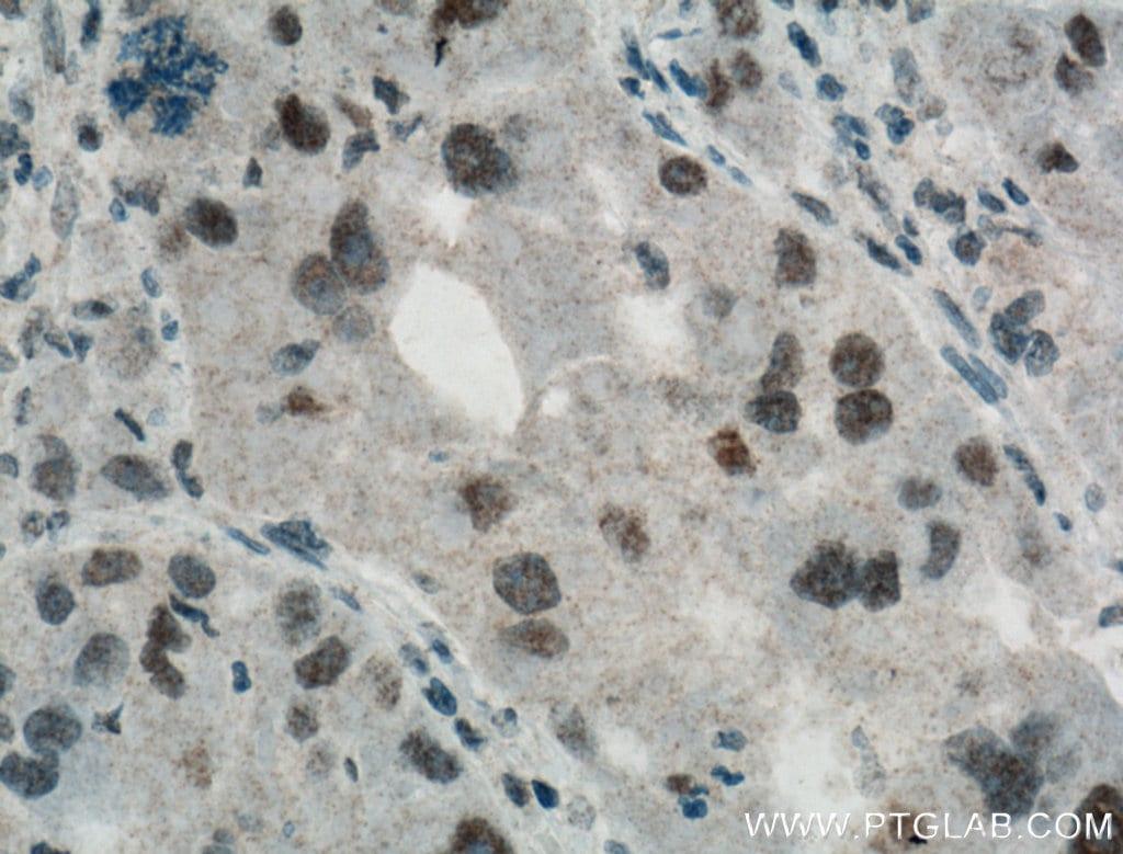 HMGB1 Antibody in Immunohistochemistry (Paraffin) (IHC (P))