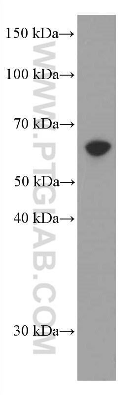 AMPK alpha Antibody in Western Blot (WB)