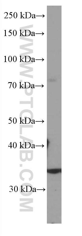 SIRT4 Antibody in Western Blot (WB)