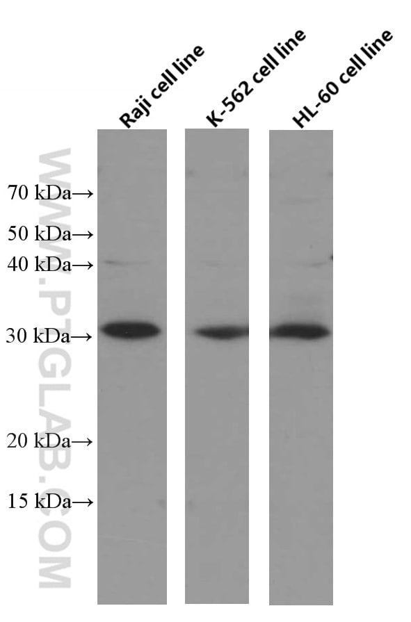 BCL10 Antibody in Western Blot (WB)