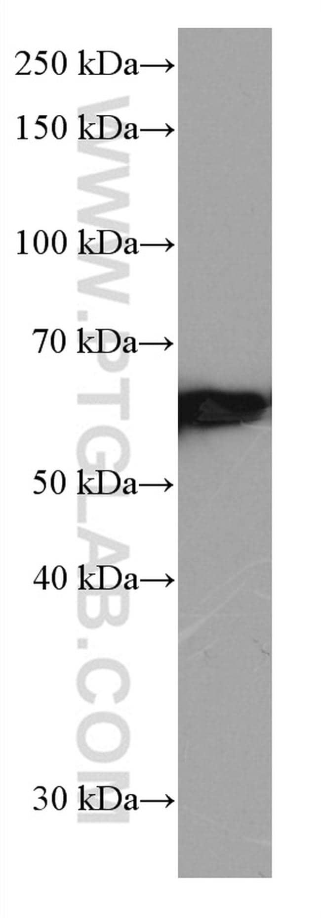 FYN Antibody in Western Blot (WB)