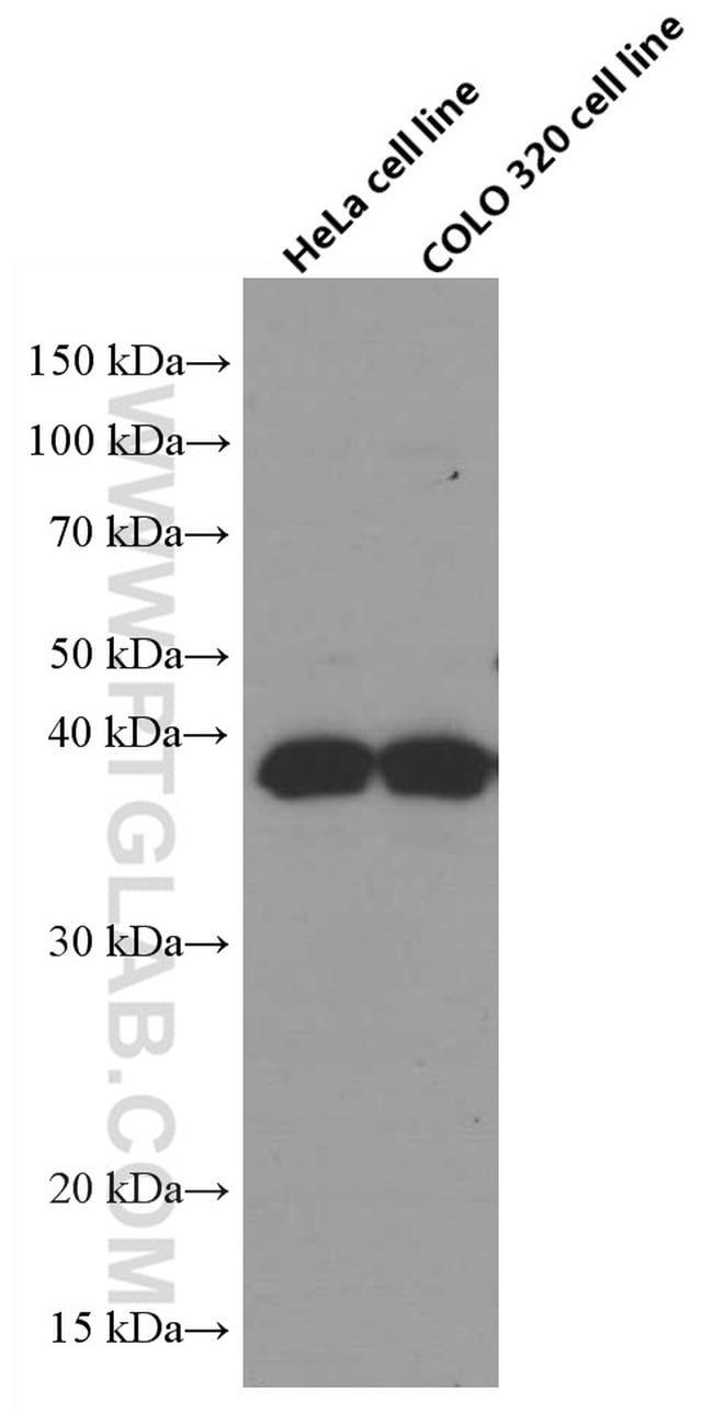 RANKL Antibody in Western Blot (WB)