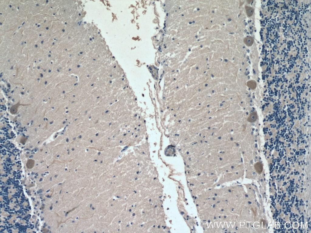 ACSL4 Antibody in Immunohistochemistry (Paraffin) (IHC (P))