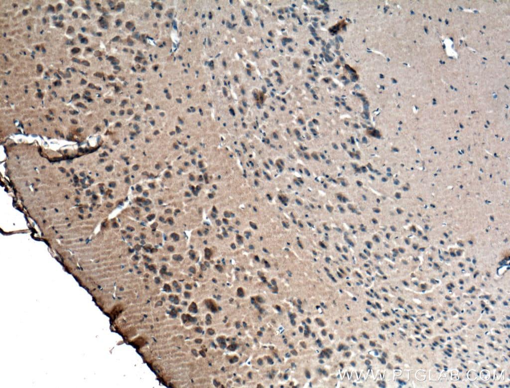 RIC8A Antibody in Immunohistochemistry (Paraffin) (IHC (P))