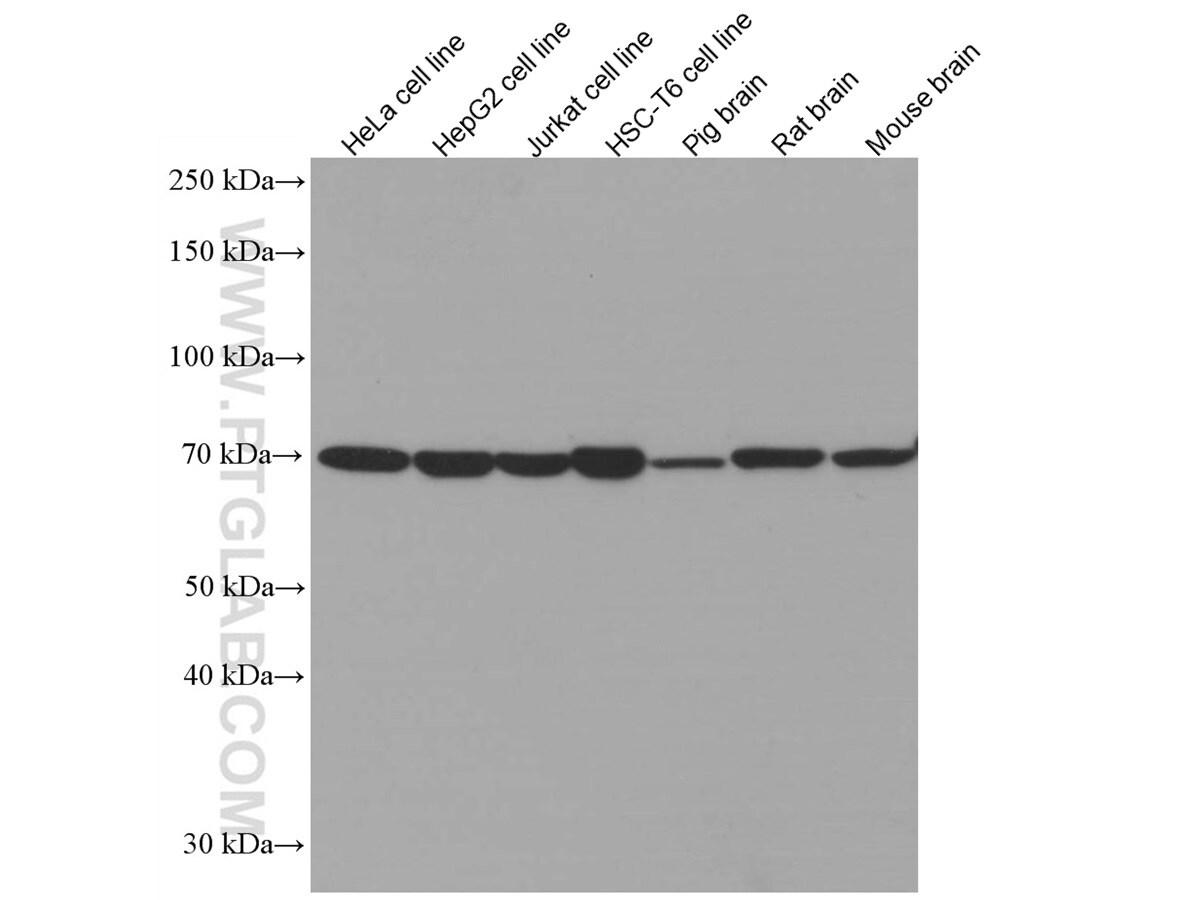 cIAP1 Antibody in Western Blot (WB)