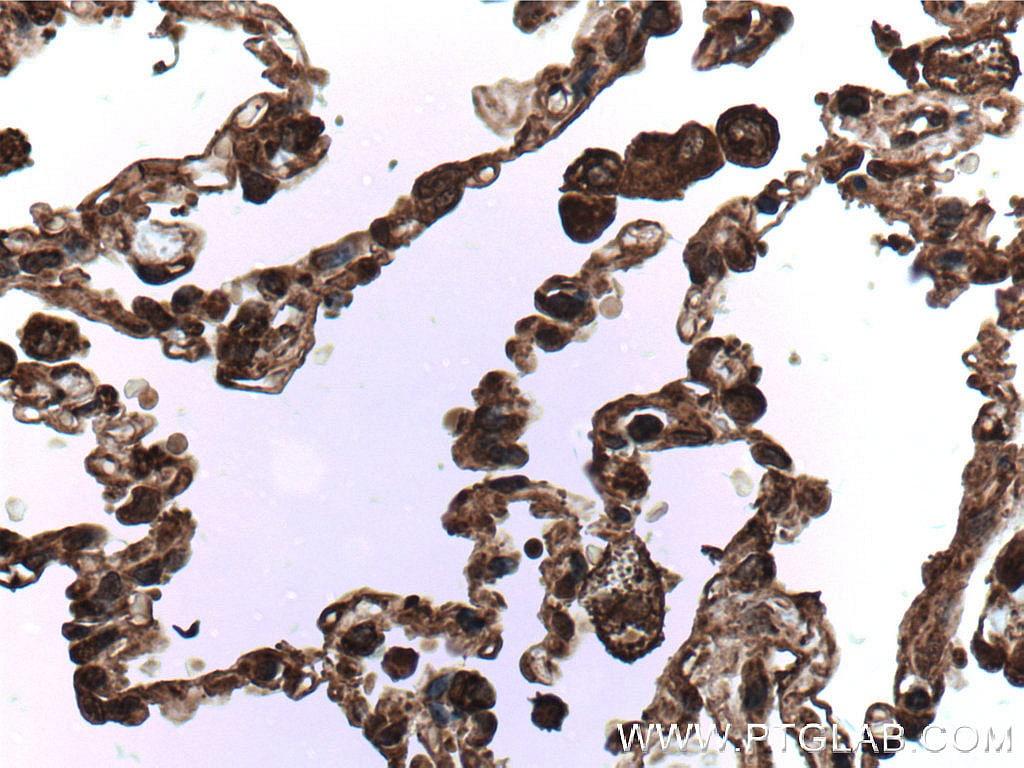 cIAP1 Antibody in Immunohistochemistry (Paraffin) (IHC (P))