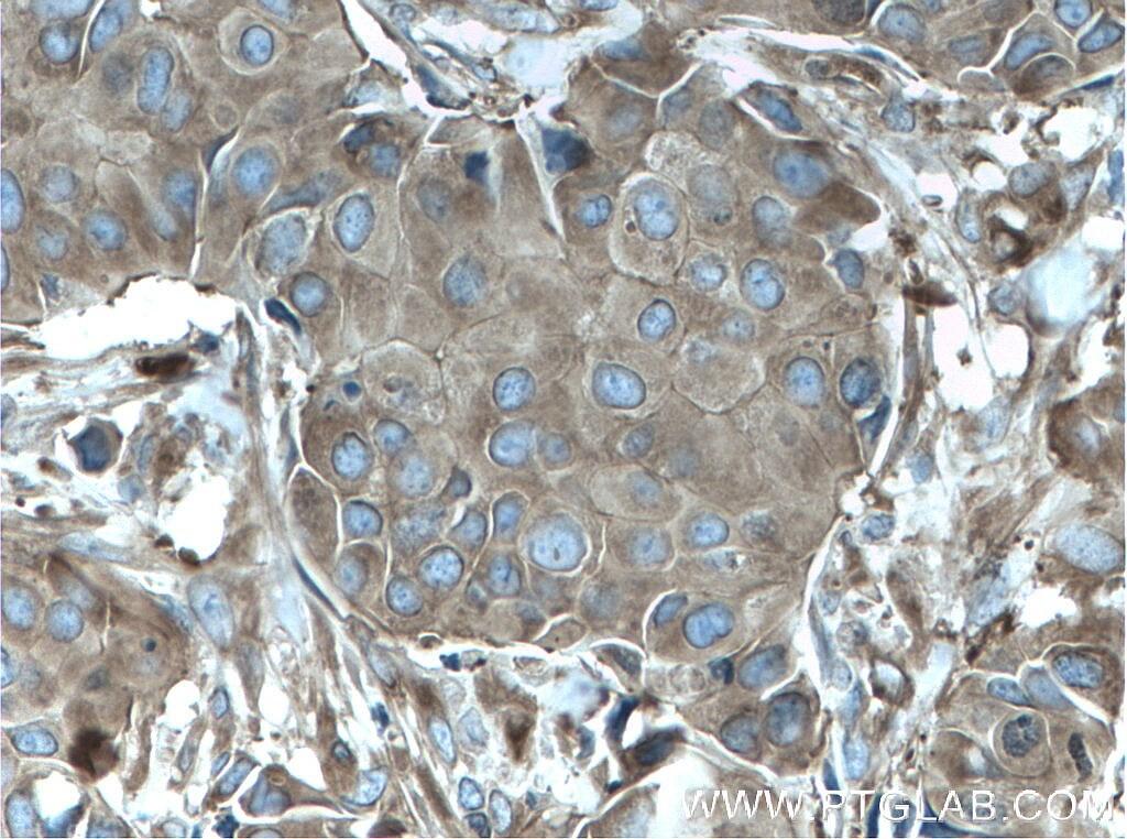 ACTN4 Antibody in Immunohistochemistry (Paraffin) (IHC (P))
