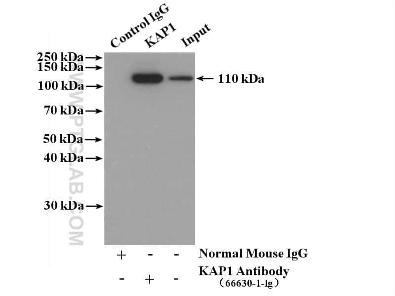 KAP1 Antibody in Immunoprecipitation (IP)