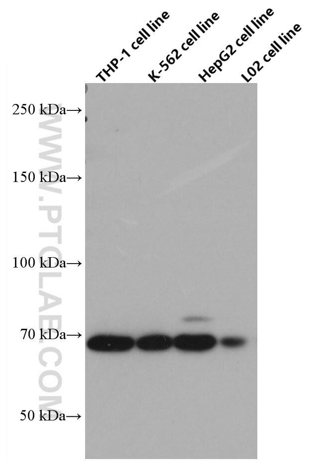 TGFBR2 Antibody in Western Blot (WB)