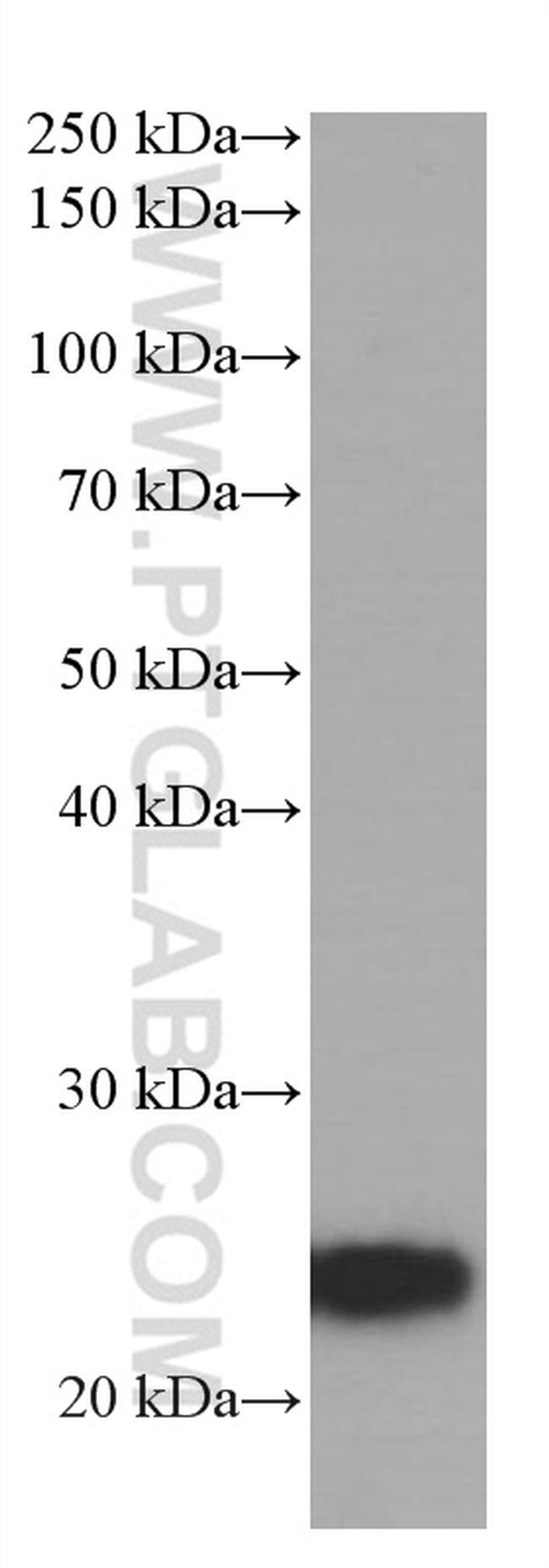ANGPTL8 Antibody in Western Blot (WB)
