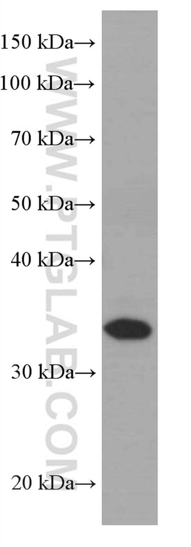 CEBPB Antibody in Western Blot (WB)