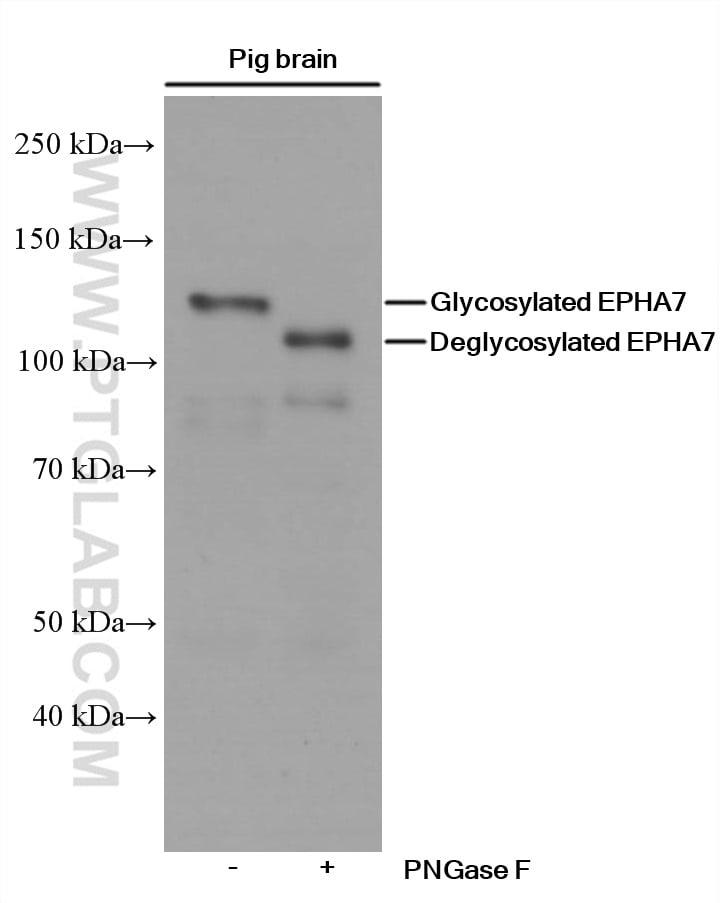 EPHA7 Antibody in Western Blot (WB)