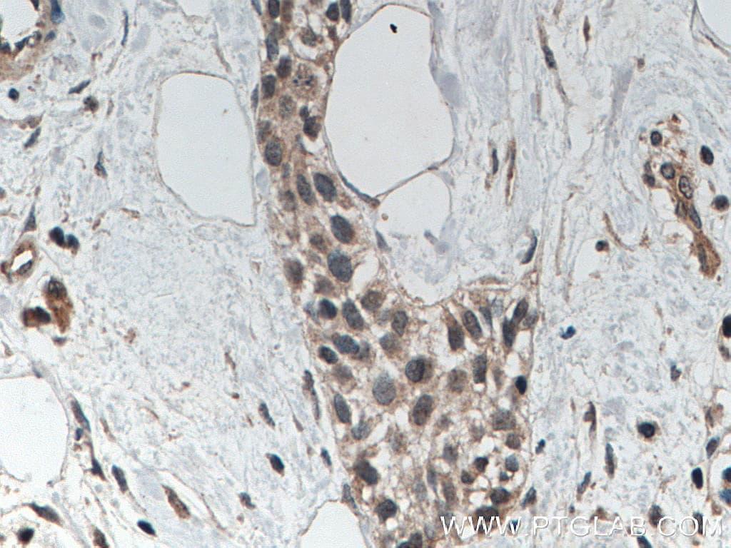 AGO2 Antibody in Immunohistochemistry (Paraffin) (IHC (P))