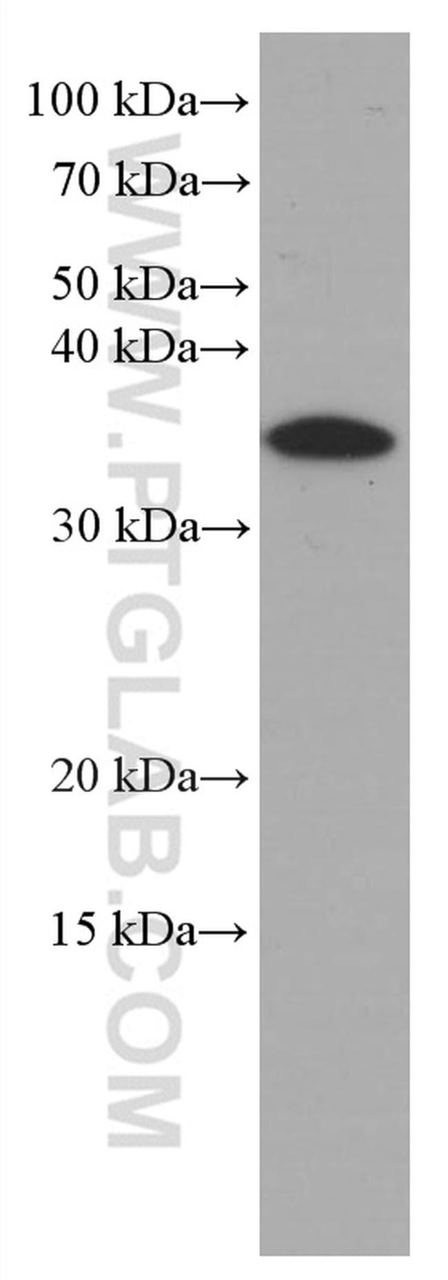 IL1 beta Antibody in Western Blot (WB)