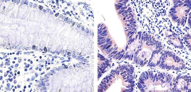 IRAK4 Antibody in Immunohistochemistry (Paraffin) (IHC (P))
