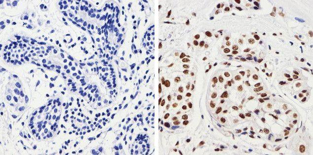 Phospho-JNK1/JNK2 (Thr183, Tyr185) Antibody in Immunohistochemistry (Paraffin) (IHC (P))