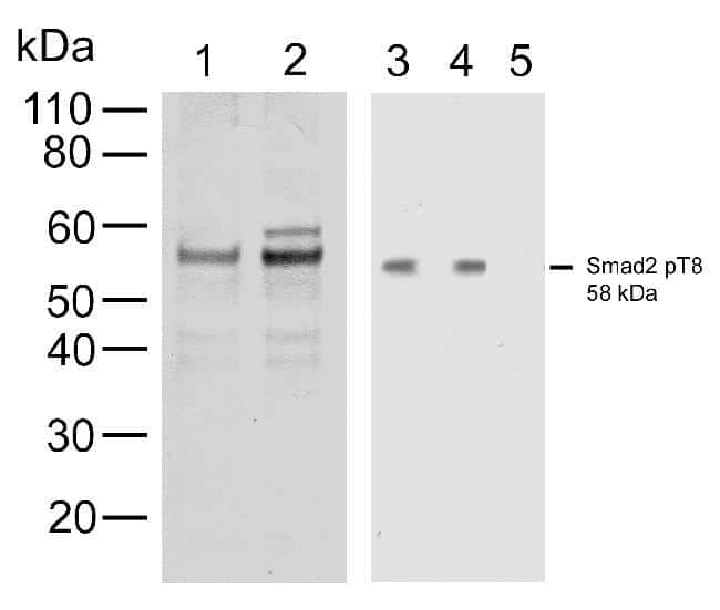 Phospho-SMAD2 (Thr8) Antibody in Cell Treatment