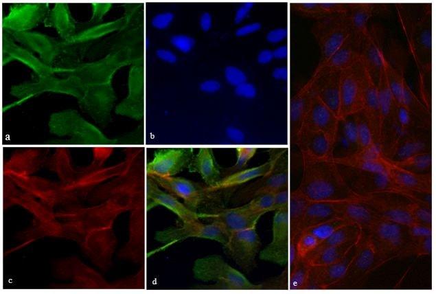Vinculin Antibody in Immunofluorescence (IF)