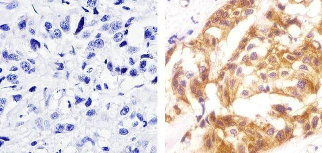 Phospho-c-Met (Tyr1230, Tyr1234, Tyr1235) Antibody in Immunohistochemistry (Paraffin) (IHC (P))