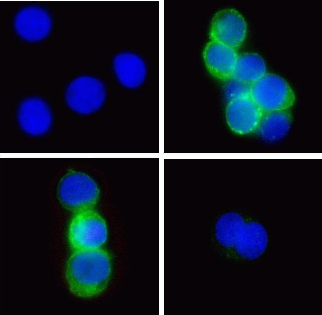 Phospho-Zap-70 (Tyr315, Tyr319) Antibody in Immunofluorescence (IF)