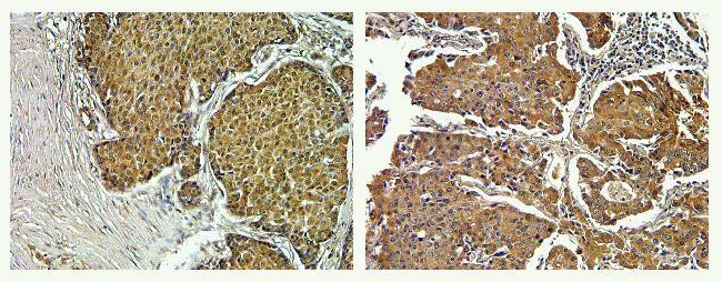 PYK2 Antibody in Immunohistochemistry (Paraffin) (IHC (P))