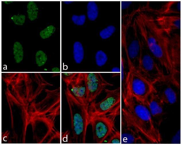 Phospho-4EBP1 (Thr37) Antibody in Immunofluorescence (IF)