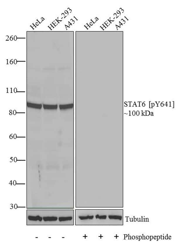 Phospho-STAT6 (Tyr641) Antibody in Western Blot (WB)