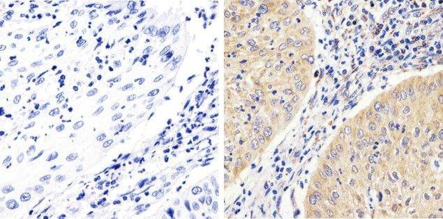 Phospho-FAK (Tyr397) Antibody in Immunohistochemistry (Paraffin) (IHC (P))