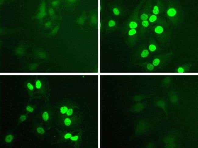 Phospho-STAT1 (Tyr701) Antibody in Cell treatment