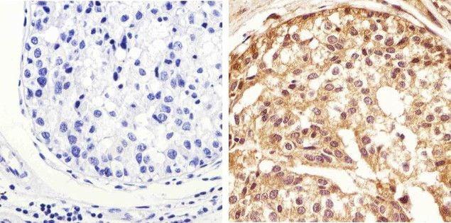 Phospho-STAT1 (Tyr701) Antibody in Immunohistochemistry (Paraffin) (IHC (P))