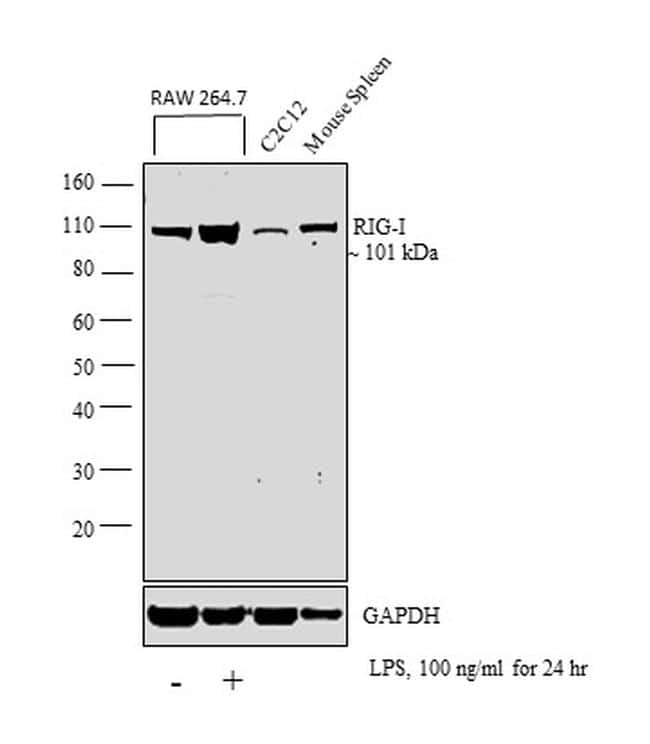 RIG-I Antibody in Cell Treatment