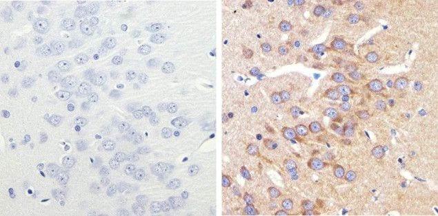 LC3B Antibody in Immunohistochemistry (Paraffin) (IHC (P))