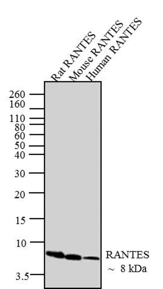 CCL5 (RANTES) Antibody in Western Blot (WB)